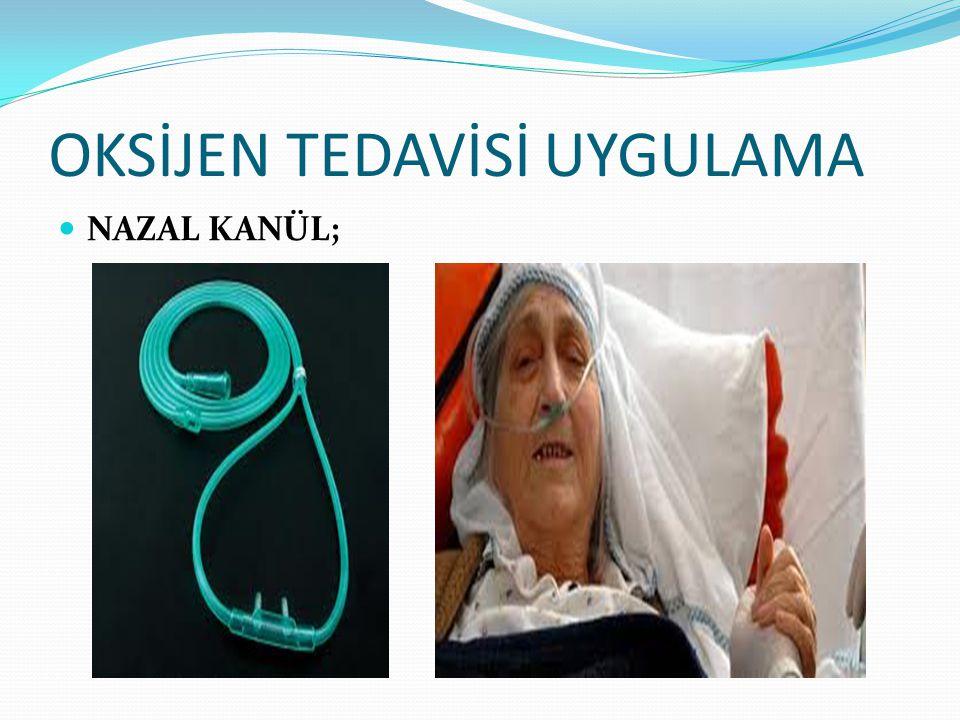 OKSİJEN TEDAVİSİ UYGULAMA NAZAL KANÜL;