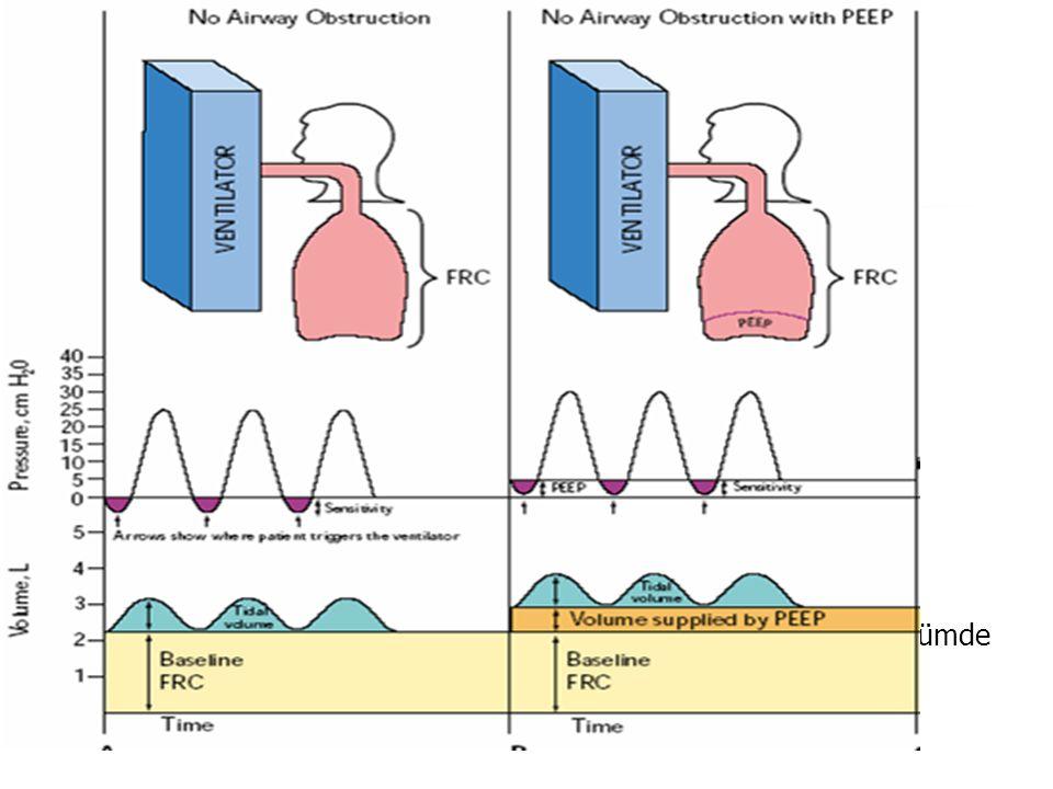 Entübasyon ve MV endikasyonları Fizyolojik: O2 desteğine rağmen devam eden hipoksi PaCO2>55 ve pH<7.25 Vital kapasite<15 ml/kg Klinik: Hava yolu kontr