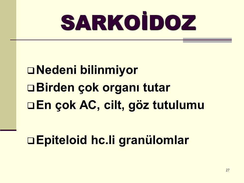 27 SARKOİDOZ  Nedeni bilinmiyor  Birden çok organı tutar  En çok AC, cilt, göz tutulumu  Epiteloid hc.li granülomlar
