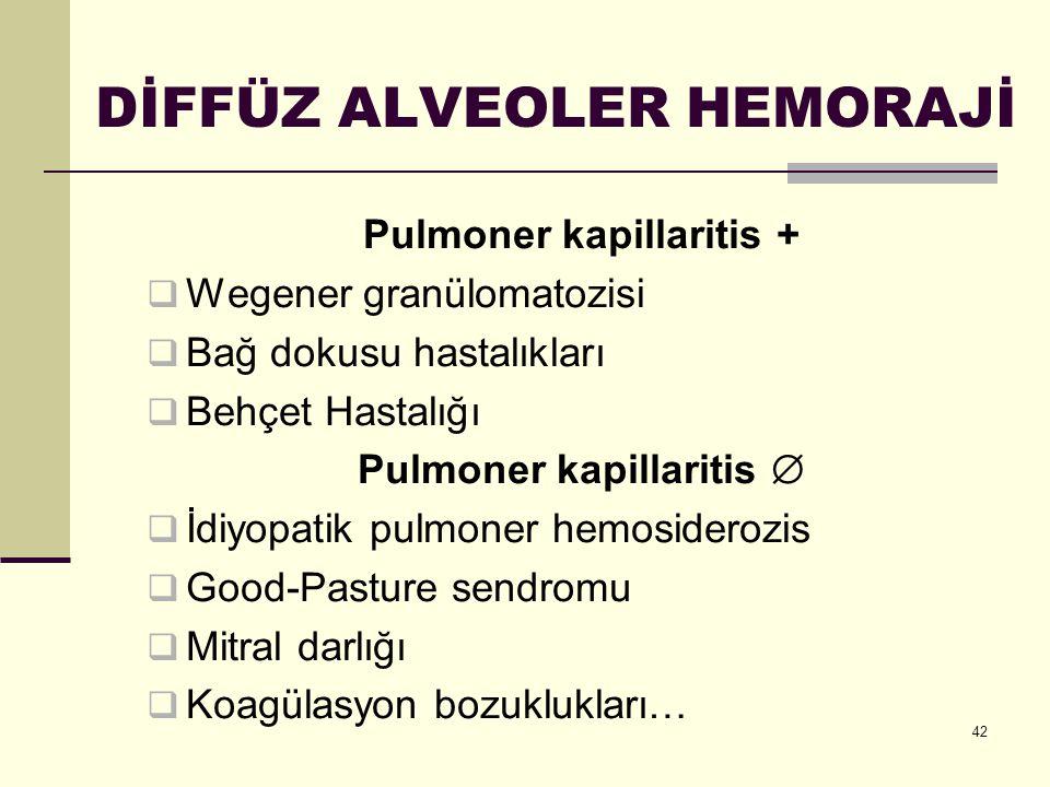 42 DİFFÜZ ALVEOLER HEMORAJİ Pulmoner kapillaritis +  Wegener granülomatozisi  Bağ dokusu hastalıkları  Behçet Hastalığı Pulmoner kapillaritis   İ