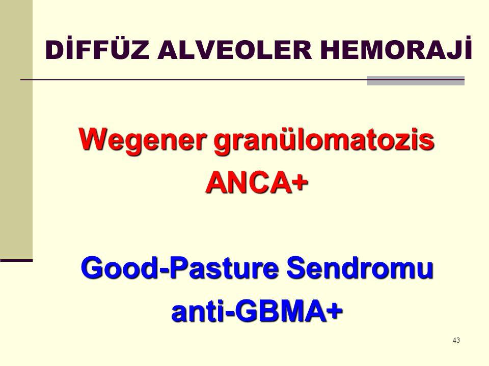 43 DİFFÜZ ALVEOLER HEMORAJİ Wegener granülomatozis ANCA+ Good-Pasture Sendromu anti-GBMA+