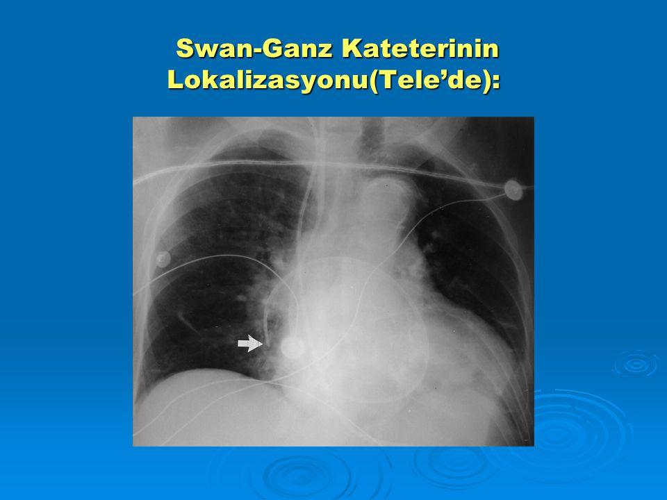 Swan-Ganz Kateterinin Lokalizasyonu(Tele'de): Swan-Ganz Kateterinin Lokalizasyonu(Tele'de):