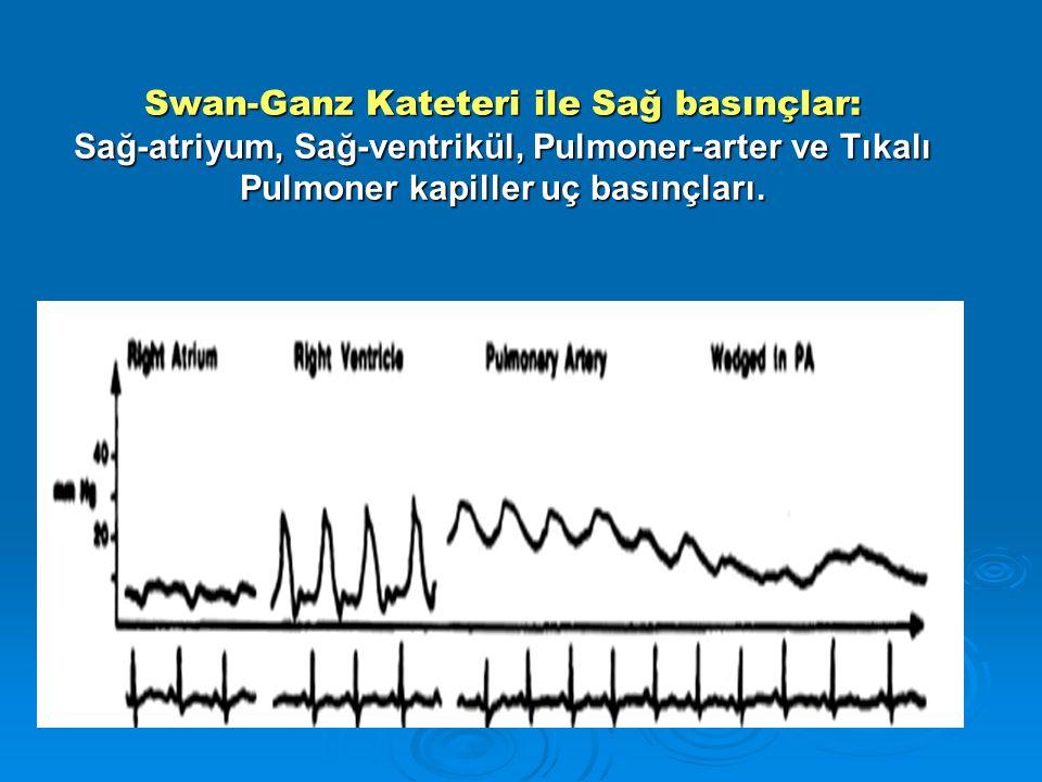 Swan-Ganz Kateteri ile Sağ basınçlar: Sağ-atriyum, Sağ-ventrikül, Pulmoner-arter ve Tıkalı Pulmoner kapiller uç basınçları.