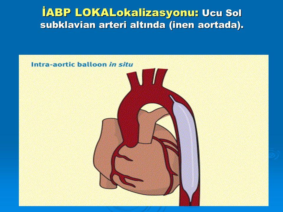 İABP LOKALokalizasyonu: Ucu Sol subklavian arteri altında (inen aortada).