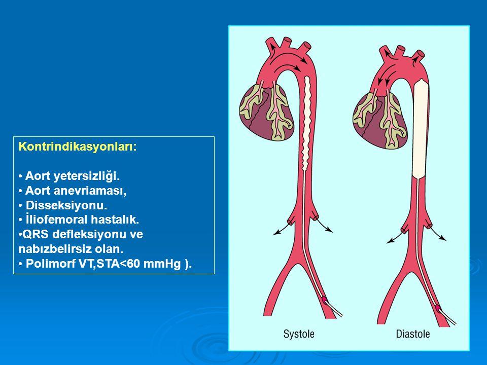Kontrindikasyonları: Aort yetersizliği.Aort anevriaması, Disseksiyonu.