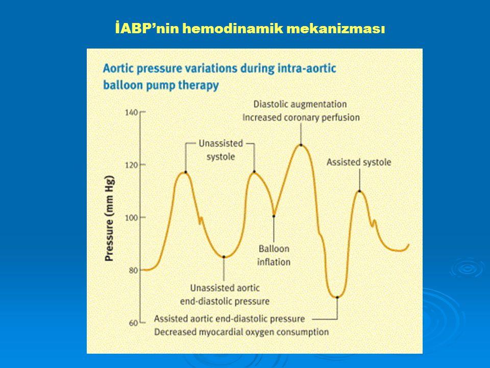 İABP'nin hemodinamik mekanizması