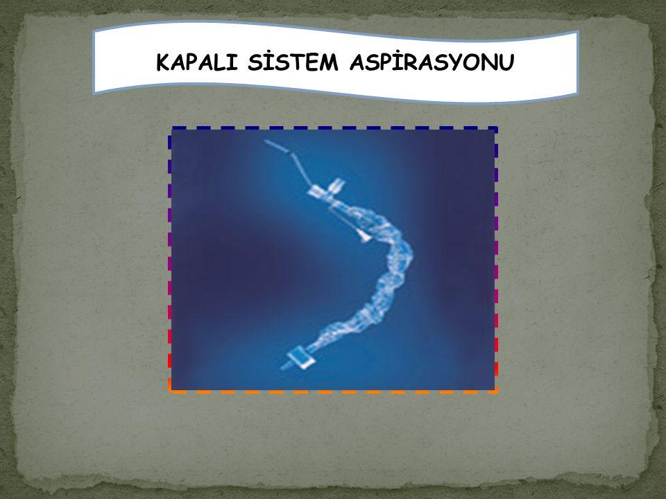 KAPALI SİSTEM ASPİRASYONU
