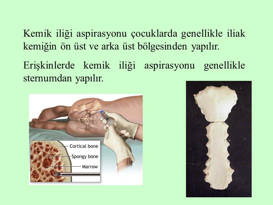 13 Kemik iliği aspirasyonu çocuklarda genellikle iliak kemiğin ön üst ve arka üst bölgesinden yapılır. Erişkinlerde kemik iliği aspirasyonu genellikle