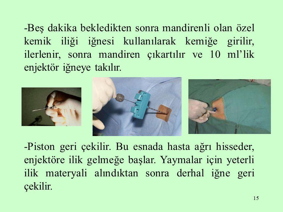 15 -Beş dakika bekledikten sonra mandirenli olan özel kemik iliği iğnesi kullanılarak kemiğe girilir, ilerlenir, sonra mandiren çıkartılır ve 10 ml'lik enjektör iğneye takılır.