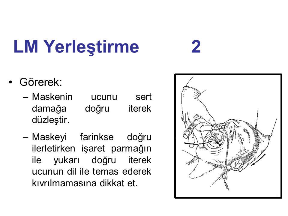 LM Yerleştirme 2 Görerek: –Maskenin ucunu sert damağa doğru iterek düzleştir. –Maskeyi farinkse doğru ilerletirken işaret parmağın ile yukarı doğru it