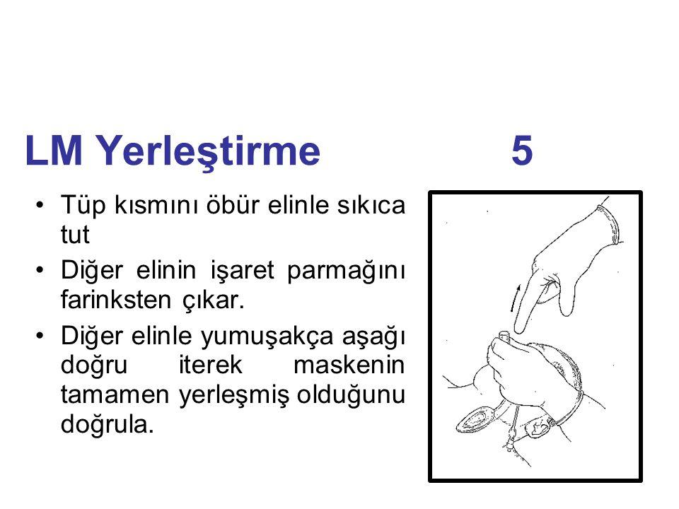 LM Yerleştirme 5 Tüp kısmını öbür elinle sıkıca tut Diğer elinin işaret parmağını farinksten çıkar. Diğer elinle yumuşakça aşağı doğru iterek maskenin