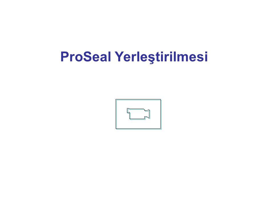 ProSeal Yerleştirilmesi
