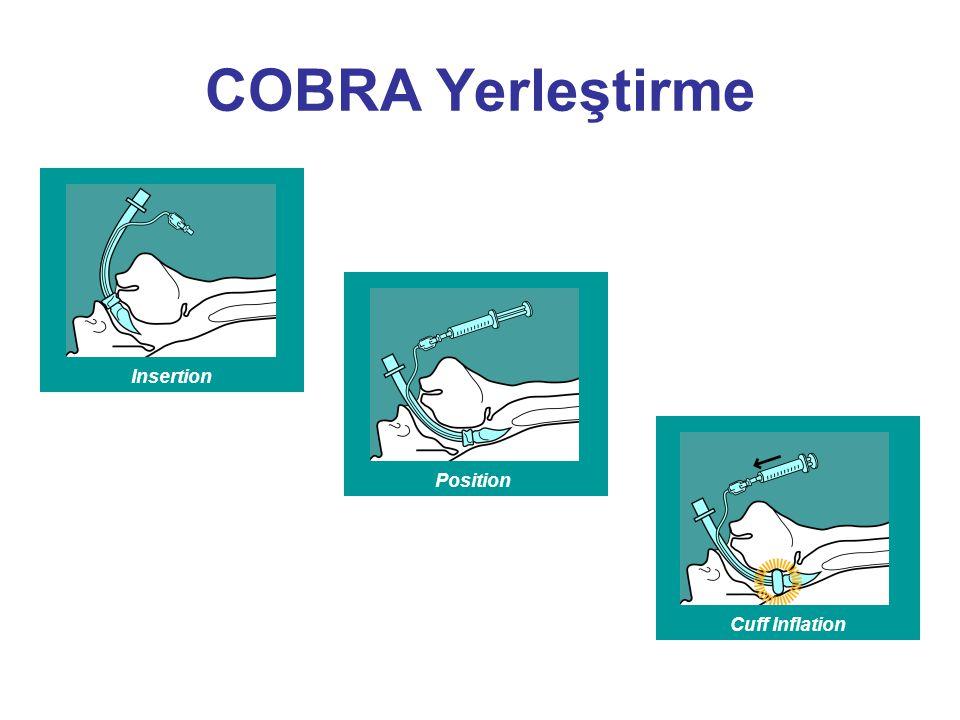 InsertionPositionCuff Inflation COBRA Yerleştirme