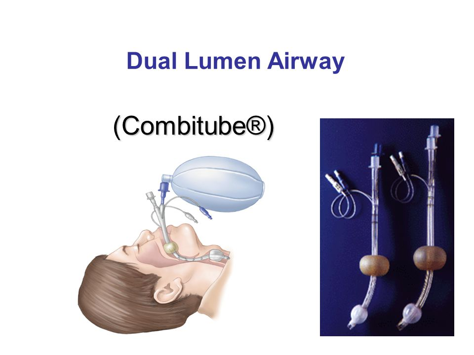 (Combitube®) Dual Lumen Airway