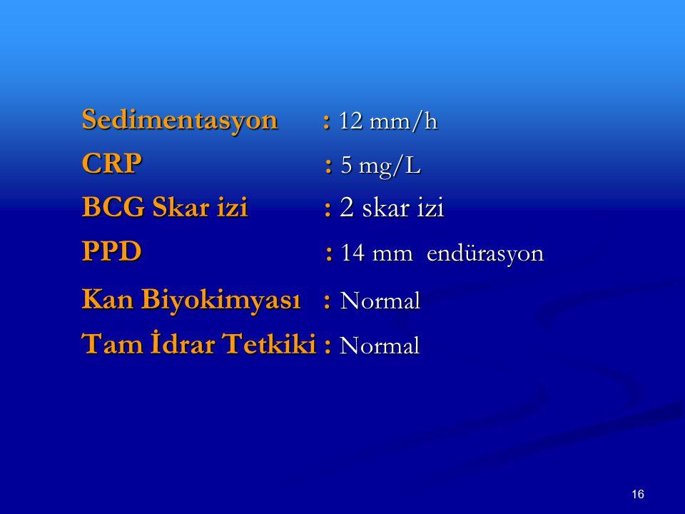16 Sedimentasyon : 12 mm/h CRP : 5 mg/L BCG Skar izi : 2 skar izi PPD : 14 mm endürasyon Kan Biyokimyası : Normal Tam İdrar Tetkiki : Normal