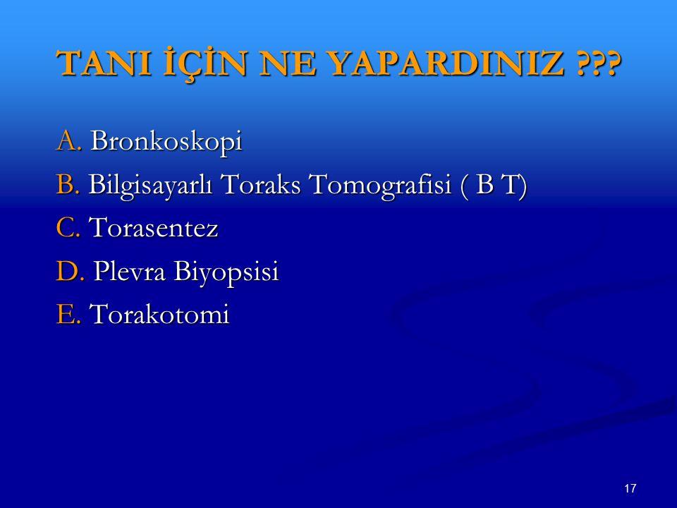 17 TANI İÇİN NE YAPARDINIZ ??? A. Bronkoskopi A. Bronkoskopi B. Bilgisayarlı Toraks Tomografisi ( B T) B. Bilgisayarlı Toraks Tomografisi ( B T) C. To
