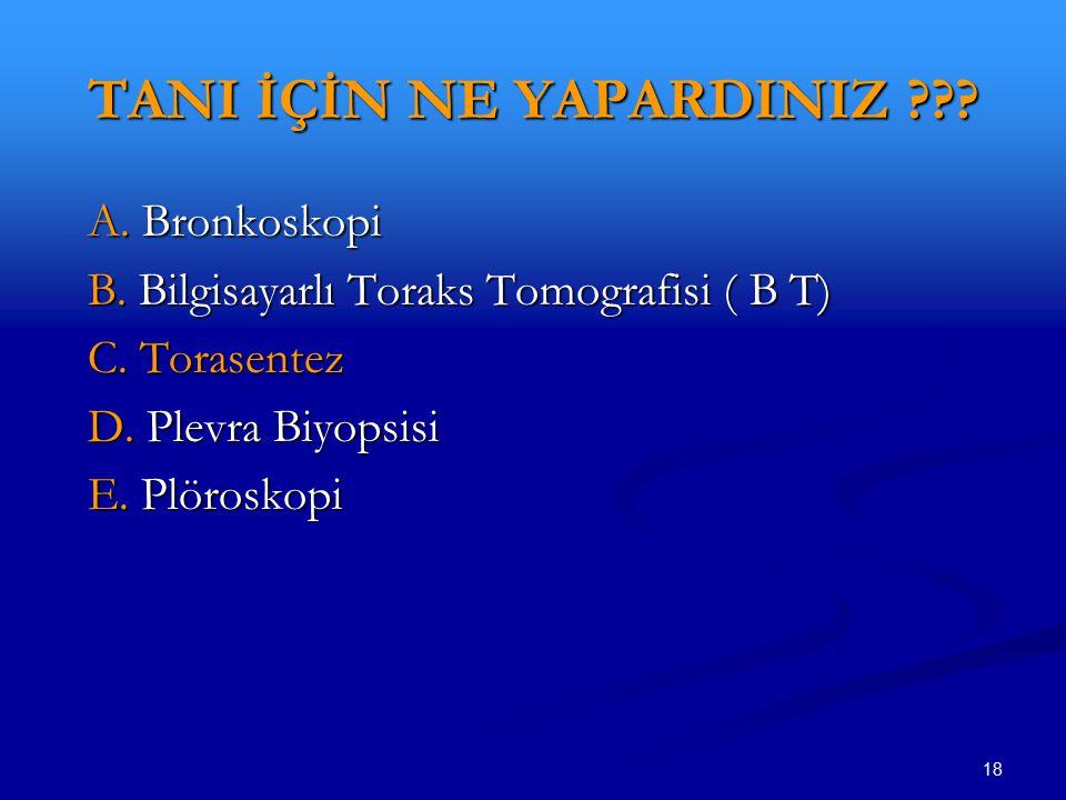 18 TANI İÇİN NE YAPARDINIZ ??? A. Bronkoskopi A. Bronkoskopi B. Bilgisayarlı Toraks Tomografisi ( B T) B. Bilgisayarlı Toraks Tomografisi ( B T) C. To