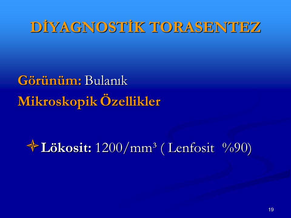 19 DİYAGNOSTİK TORASENTEZ Görünüm: Bulanık Mikroskopik Özellikler  Lökosit: 1200/mm³ ( Lenfosit %90)  Lökosit: 1200/mm³ ( Lenfosit %90)
