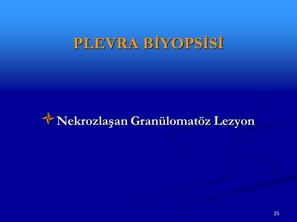 25 PLEVRA BİYOPSİSİ  Nekrozlaşan Granülomatöz Lezyon