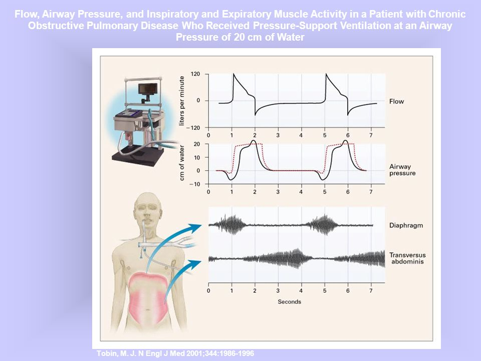 Tobin, M. J. N Engl J Med 2001;344:1986-1996 Flow, Airway Pressure, and Inspiratory and Expiratory Muscle Activity in a Patient with Chronic Obstructi