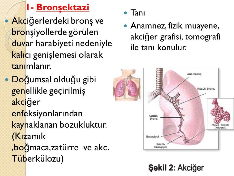1- Bronşektazi Akci ğ erlerdeki bronş ve bronşiyollerde görülen duvar harabiyeti nedeniyle kalıcı genişlemesi olarak tanımlanır.