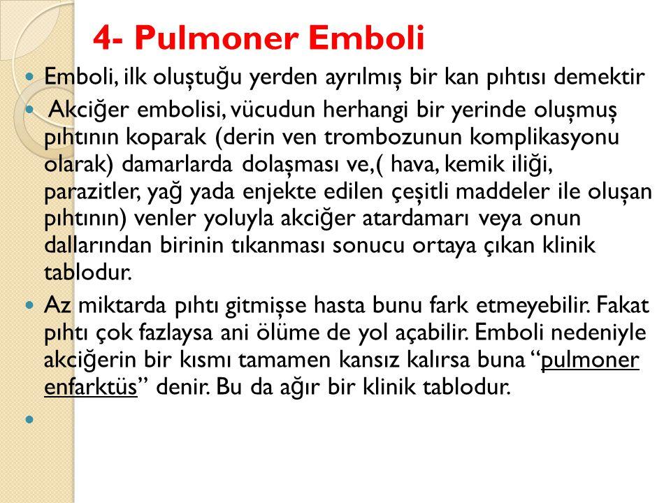 4- Pulmoner Emboli Emboli, ilk oluştu ğ u yerden ayrılmış bir kan pıhtısı demektir Akci ğ er embolisi, vücudun herhangi bir yerinde oluşmuş pıhtının koparak (derin ven trombozunun komplikasyonu olarak) damarlarda dolaşması ve,( hava, kemik ili ğ i, parazitler, ya ğ yada enjekte edilen çeşitli maddeler ile oluşan pıhtının) venler yoluyla akci ğ er atardamarı veya onun dallarından birinin tıkanması sonucu ortaya çıkan klinik tablodur.