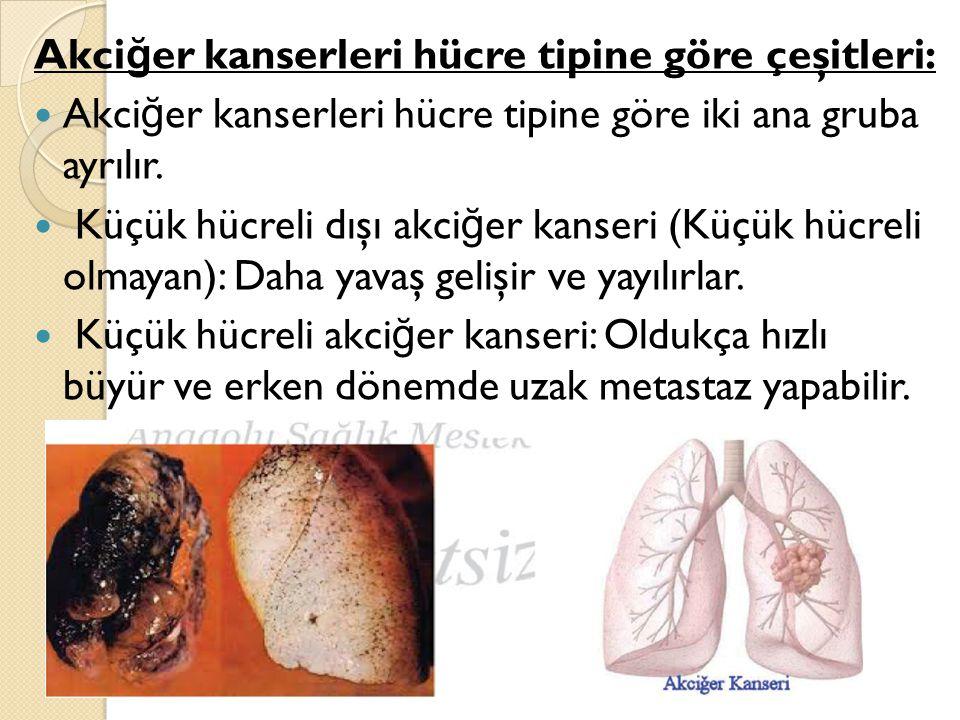 Akci ğ er kanserleri hücre tipine göre çeşitleri: Akci ğ er kanserleri hücre tipine göre iki ana gruba ayrılır.