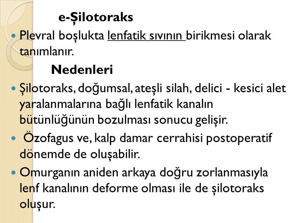 e-Şilotoraks Plevral boşlukta lenfatik sıvının birikmesi olarak tanımlanır.