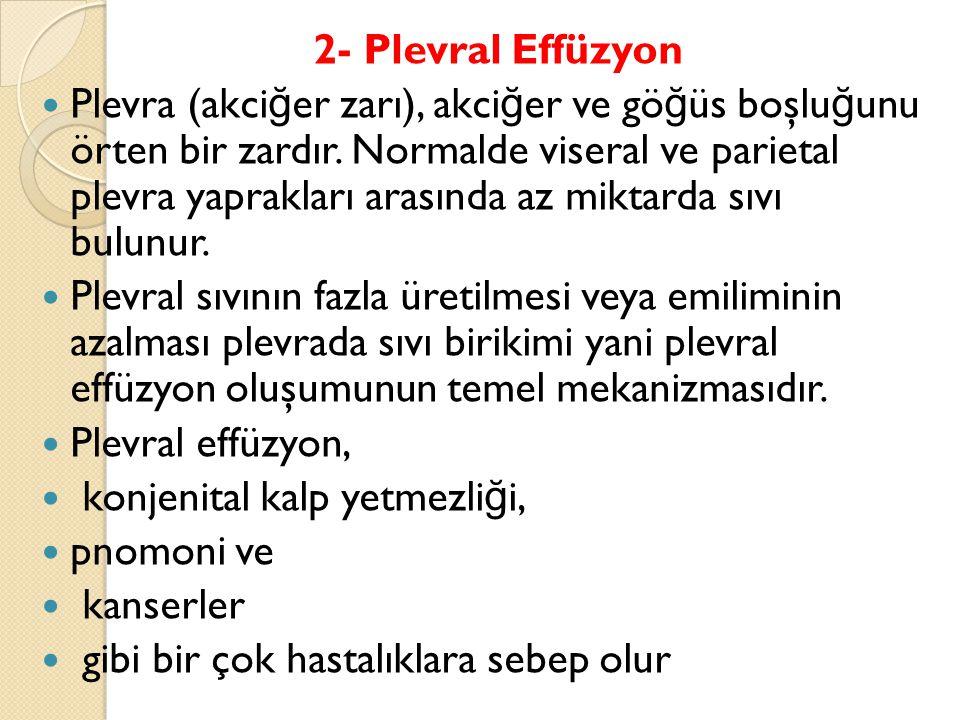 2- Plevral Effüzyon Plevra (akci ğ er zarı), akci ğ er ve gö ğ üs boşlu ğ unu örten bir zardır.