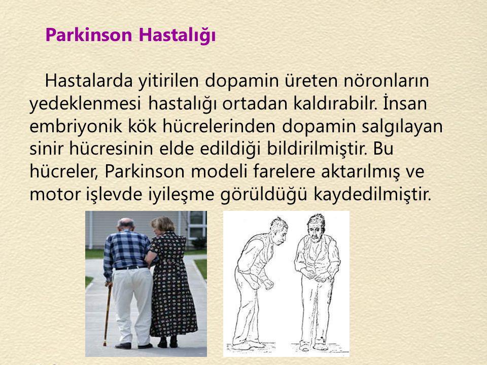 Parkinson Hastalığı Hastalarda yitirilen dopamin üreten nöronların yedeklenmesi hastalığı ortadan kaldırabilr. İnsan embriyonik kök hücrelerinden dopa