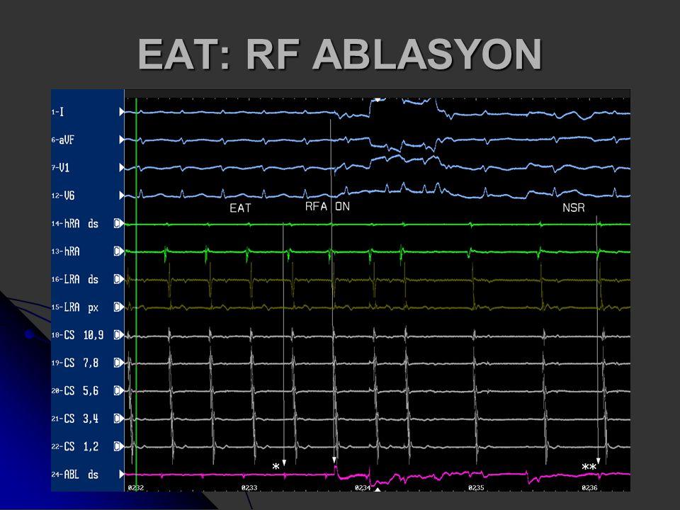 EAT: RF ABLASYON