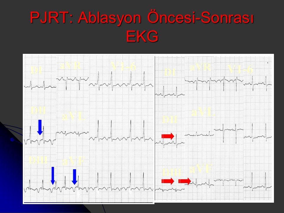 PJRT: Ablasyon Öncesi-Sonrası EKG DI DII DIII aVR aVL aVF V1-6 DI DII DIII aVR aVL aVF V1-6