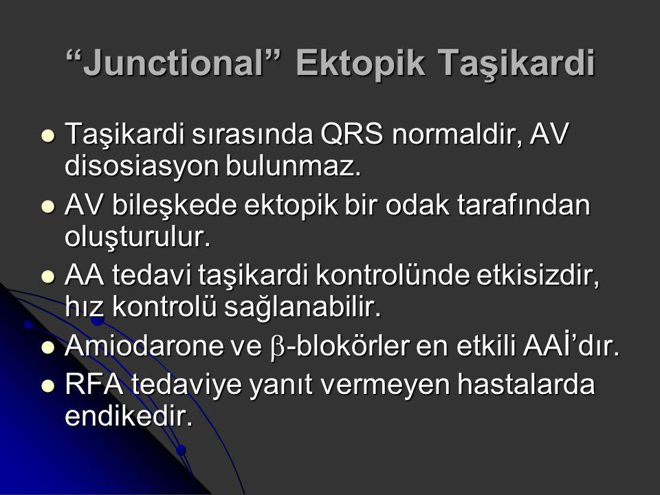 """""""Junctional"""" Ektopik Taşikardi Taşikardi sırasında QRS normaldir, AV disosiasyon bulunmaz. Taşikardi sırasında QRS normaldir, AV disosiasyon bulunmaz."""