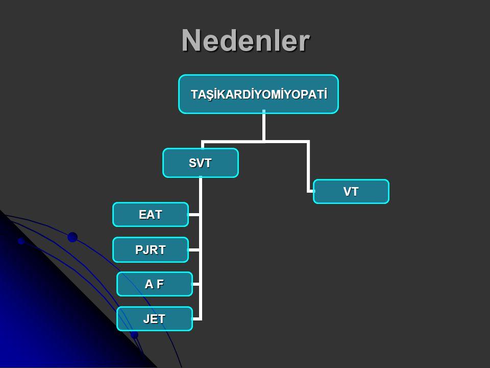 Permanent Junctional Reciprocating Tachycardia Ventrikülden atriyuma iletim gösteren yavaş iletimli aksesuar yola bağlıdır.