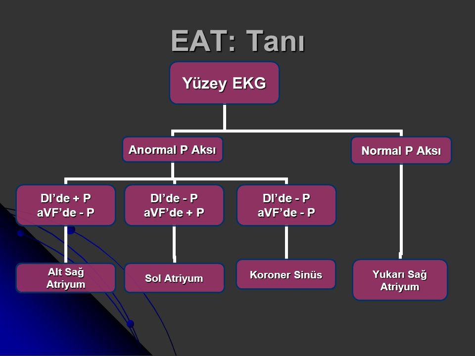 EAT: Tanı Yüzey EKG Anormal P Aksı DI'de + P aVF'de - P Alt Sağ Atriyum DI'de - P aVF'de + P Sol Atriyum DI'de - P aVF'de - P Koroner Sinüs Normal P A