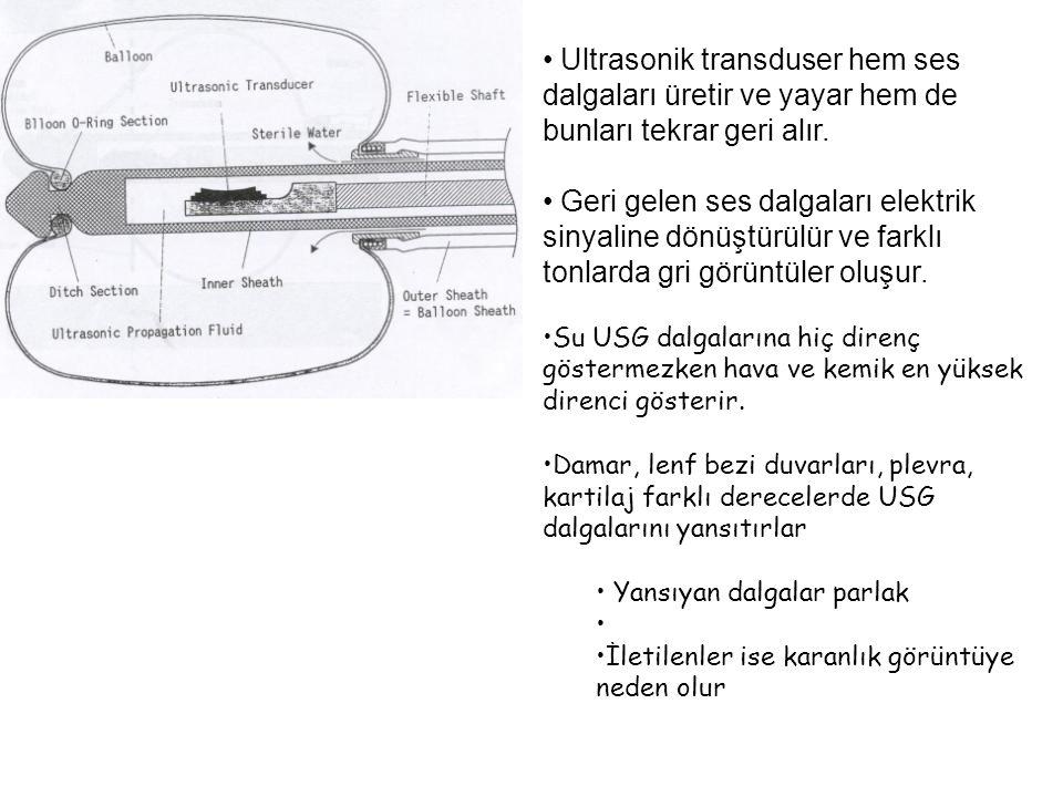 Ultrasonik transduser hem ses dalgaları üretir ve yayar hem de bunları tekrar geri alır. Geri gelen ses dalgaları elektrik sinyaline dönüştürülür ve f