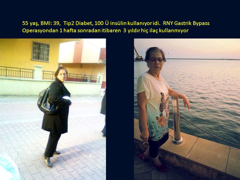 55 yaş, BMI: 39, Tip2 Diabet, 100 Ü insülin kullanıyor idi. RNY Gastrik Bypass Operasyondan 1 hafta sonradan itibaren 3 yıldır hiç ilaç kullanmıyor
