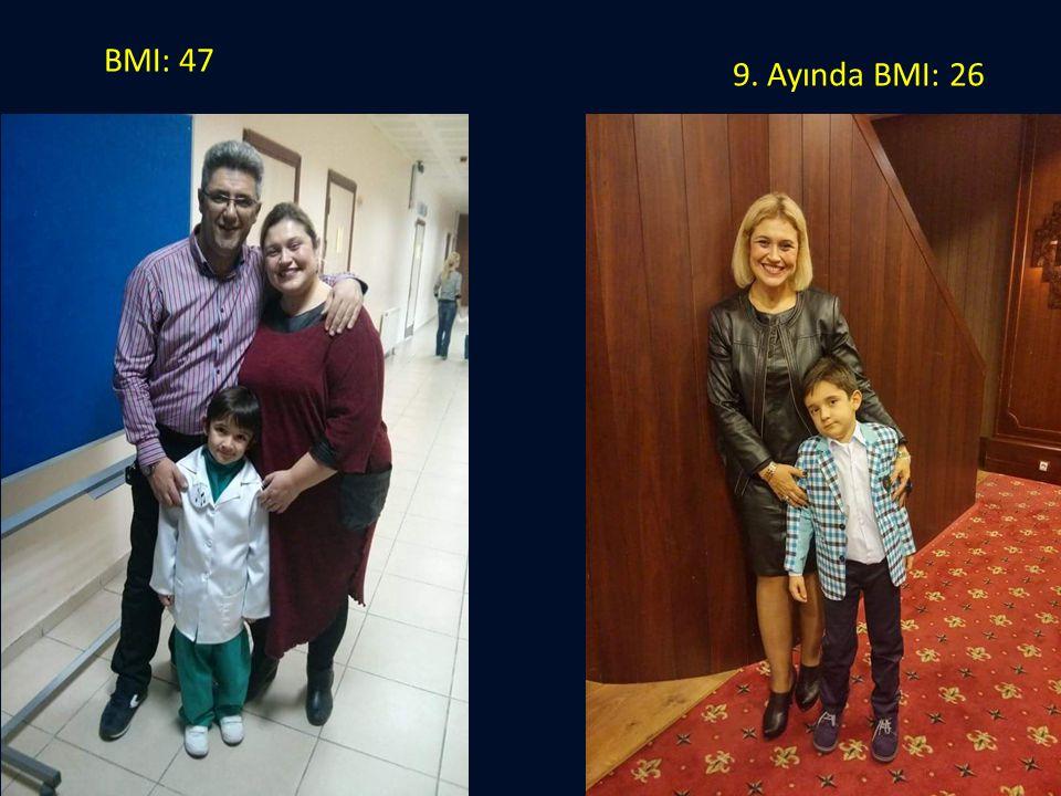 9. Ayında BMI: 26 BMI: 47