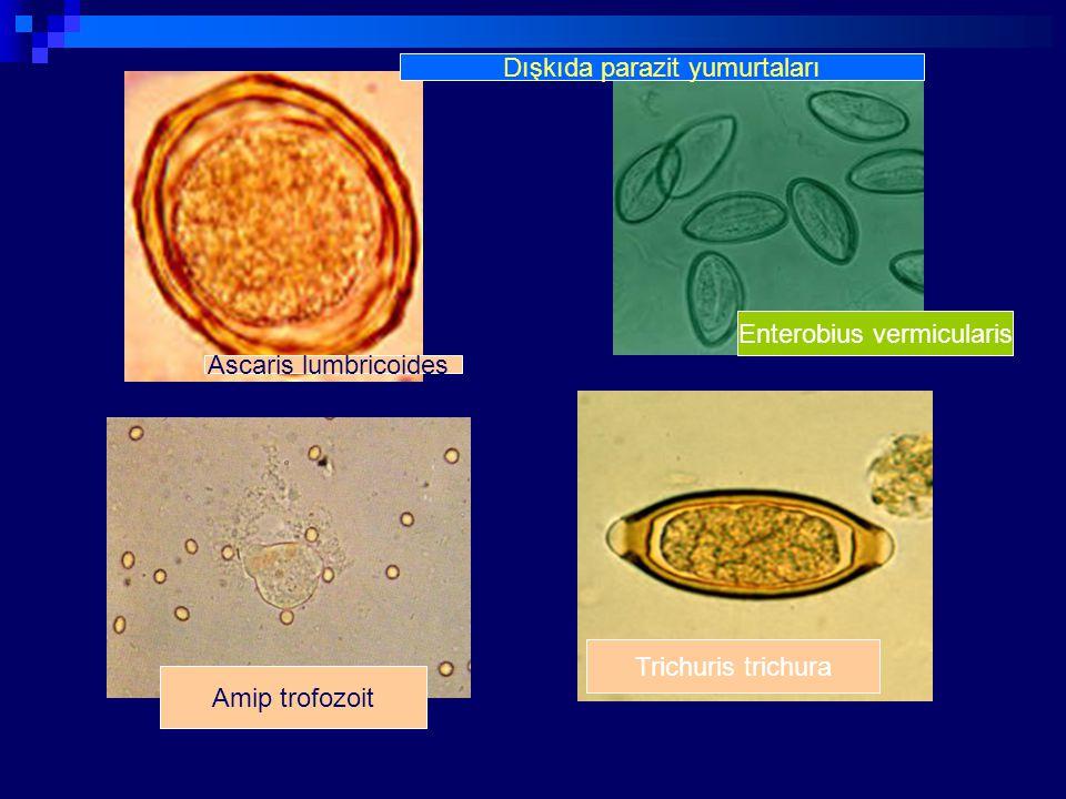 Dışkıda parazit yumurtaları Amip trofozoit Trichuris trichura Enterobius vermicularis Ascaris lumbricoides