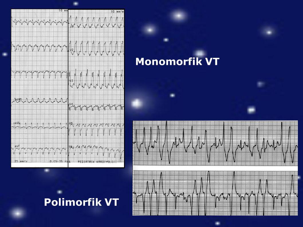 Monomorfik VT Polimorfik VT