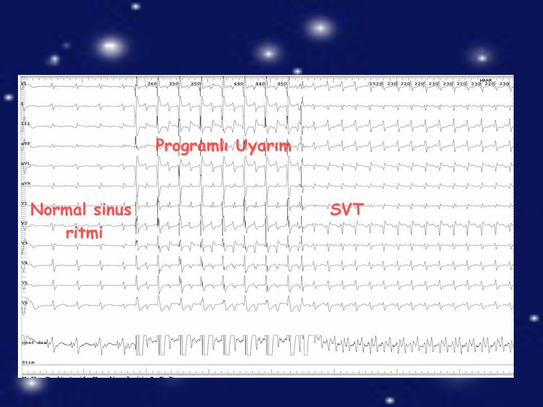 Normal sinus ritmi SVT Programlı Uyarım