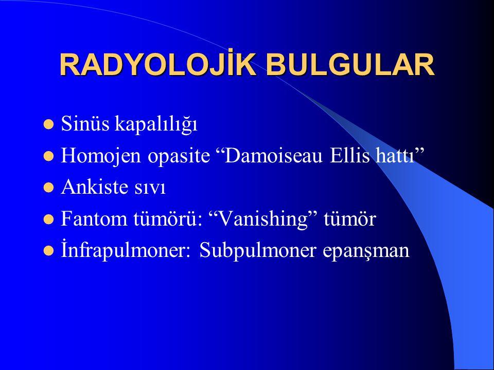 """RADYOLOJİK BULGULAR Sinüs kapalılığı Homojen opasite """"Damoiseau Ellis hattı"""" Ankiste sıvı Fantom tümörü: """"Vanishing"""" tümör İnfrapulmoner: Subpulmoner"""
