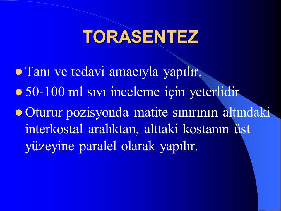 TORASENTEZ Tanı ve tedavi amacıyla yapılır. 50-100 ml sıvı inceleme için yeterlidir Oturur pozisyonda matite sınırının altındaki interkostal aralıktan