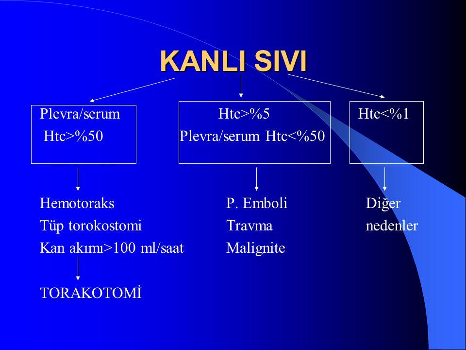 KANLI SIVI Plevra/serum Htc>%5 Htc<%1 Htc>%50Plevra/serum Htc<%50 HemotoraksP. EmboliDiğer Tüp torokostomiTravmanedenler Kan akımı>100 ml/saatMalignit