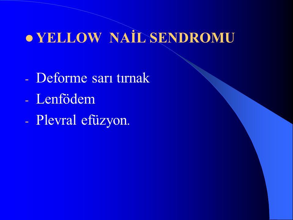 YELLOW NAİL SENDROMU - Deforme sarı tırnak - Lenfödem - Plevral efüzyon.