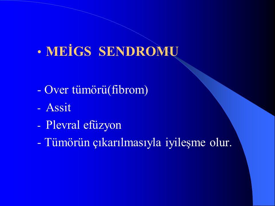 MEİGS SENDROMU - Over tümörü(fibrom) - Assit - Plevral efüzyon - Tümörün çıkarılmasıyla iyileşme olur.