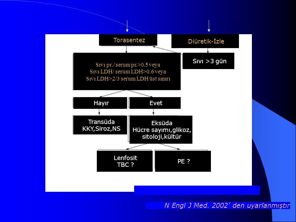 Torasentez Diüretik-İzle N Engl J Med. 2002' den uyarlanmıştır Sıvı pr./ serum pr.>0.5 veya Sıvı LDH/ serum LDH>0.6 veya Sıvı LDH>2/3 serum LDH üst sı