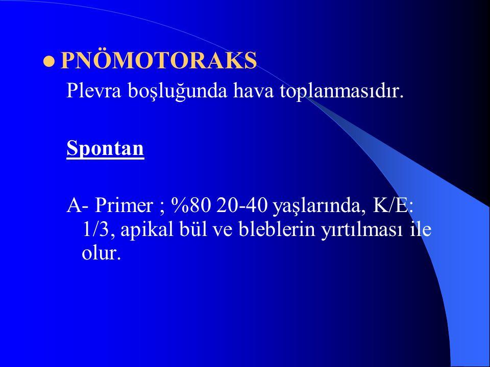 PNÖMOTORAKS Plevra boşluğunda hava toplanmasıdır. Spontan A- Primer ; %80 20-40 yaşlarında, K/E: 1/3, apikal bül ve bleblerin yırtılması ile olur.