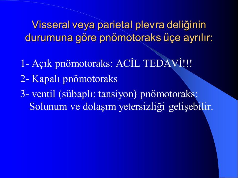 Visseral veya parietal plevra deliğinin durumuna göre pnömotoraks üçe ayrılır: 1- Açık pnömotoraks: ACİL TEDAVİ!!! 2- Kapalı pnömotoraks 3- ventil (sü