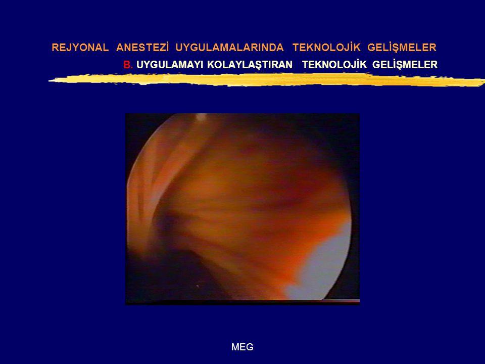 MEG zFiberoptik Epiduroskopi REJYONAL ANESTEZİ UYGULAMALARINDA TEKNOLOJİK GELİŞMELER B.